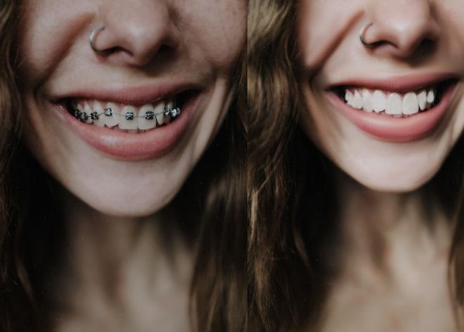 Teeth braces removal.jpg