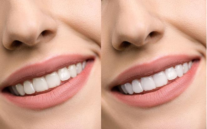 Teeth Whitening banner.jpg