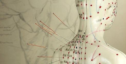 Community Acupuncture.jpg