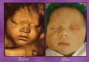 3D/4D HD-Live Ultrasound Images at Baby's Bungalow