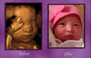 3D Ultrasound Images at Baby's Bungalow