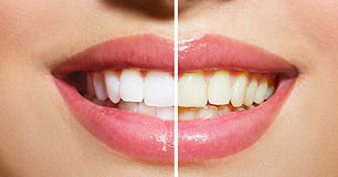 teeth-whitening.jpg