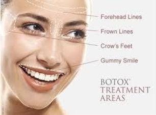 botox areas.jpg