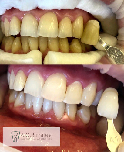 Tooth Whitening (In surgery)