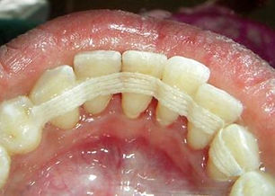 splinting_denticare.jpg