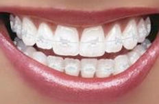 ceramic braces.jpg