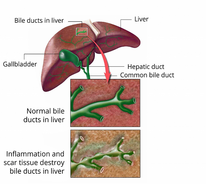 duct liver.png
