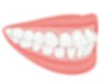 teeth protrution.png