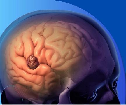 Brain ABSCESSES.png