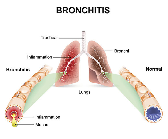 bronchial.jpg
