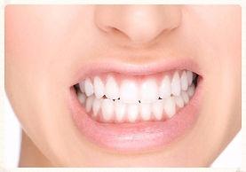 Hiperboloide Odontologia