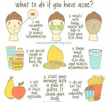 Acne/ Pimples