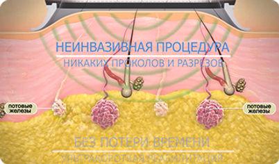 лечени гиперидроза