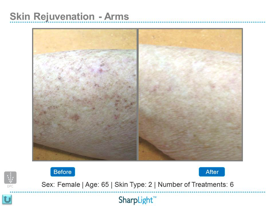 Before & After Arm