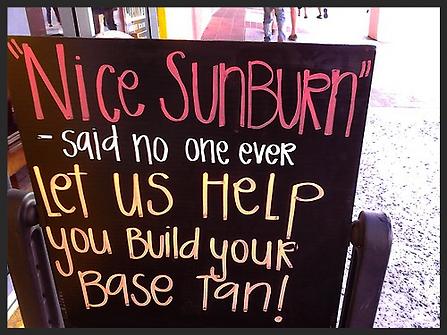 Nice Sunburn