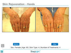 Before & After Hand