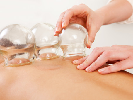 Now Offering Cupping Therapy