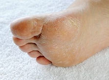 fungal foot.jpg