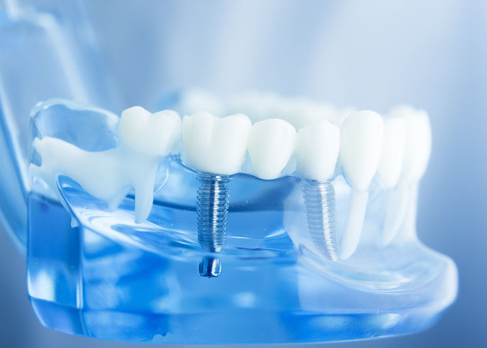 Dental tooth dentistry student learning teaching model showing teeth, roots, gums, gum disease, toot