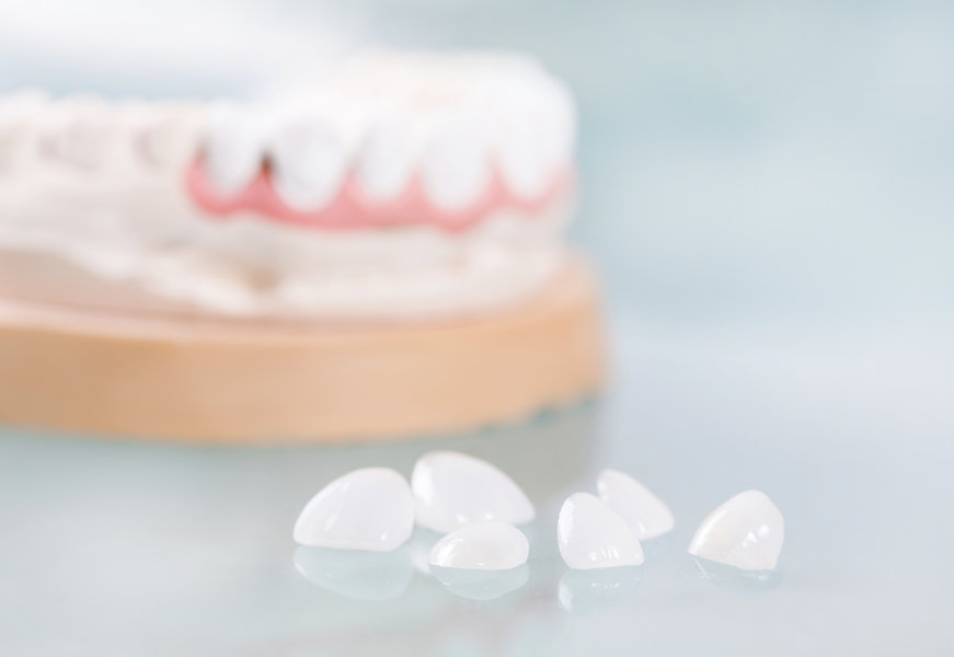 Dental veneers are lying on a blue background in the laboratory.jpg