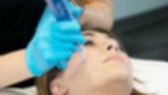 skinpen-microneedling-patient.jpg