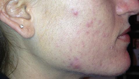 acne-case-2b.jpg