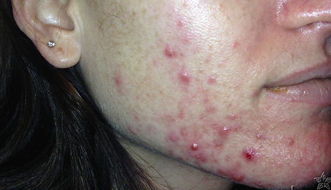 acne-case-2a.jpg