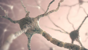 Ученые поняли, откуда берутся таинственные магнитные шарики в мозге
