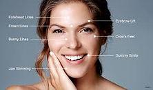 botox face areas.jpg