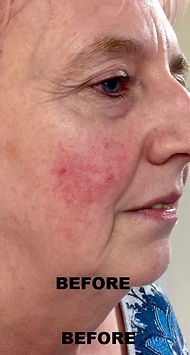 Skincare Before picture