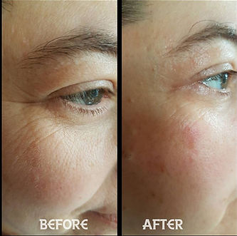 Skincare Before and After picture