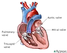 Aortic%20valve_edited.png