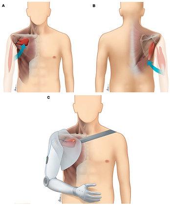 Shoulder disarticulation