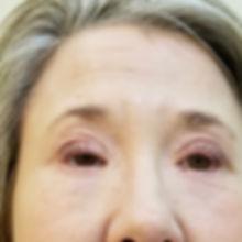 Eyebrows-before-1