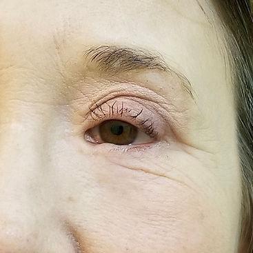 Eyebrows-before