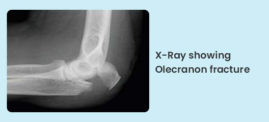 X-Ray showing Olecranon fracture