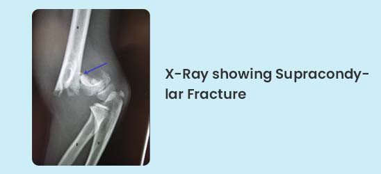 X-Ray showing Supracondylar Fracture