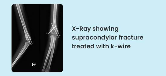 X-Ray showing supracondylar fracture treated with k-wire