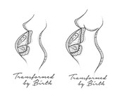 Transformed by Birth Doula