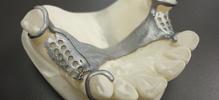 3D-Systems_Dental_1