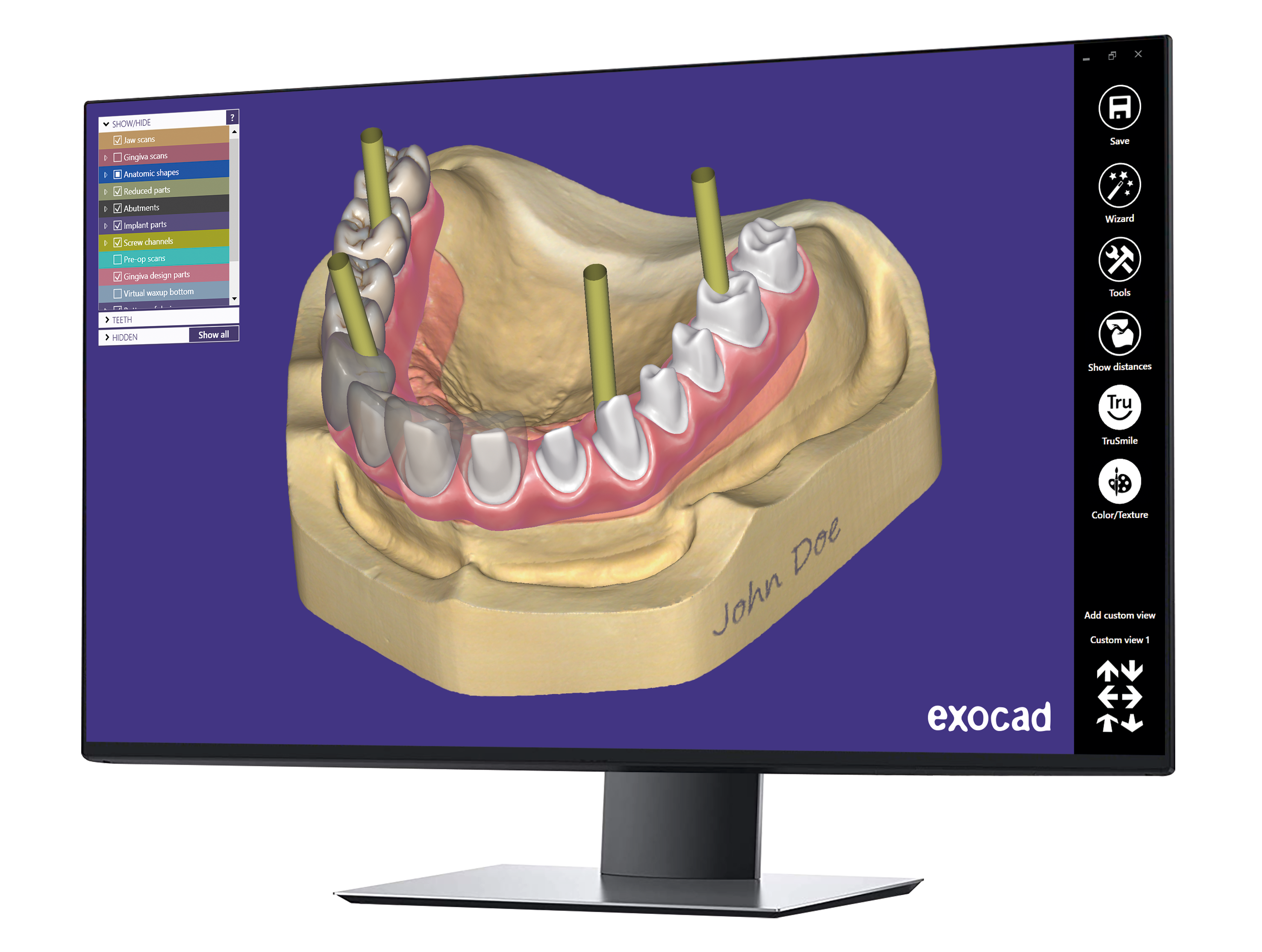 exocad-DentalCAD-Page-13-Monitor-Implant