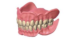 exocad-DentalCAD-Page-11-Add-on-full-den