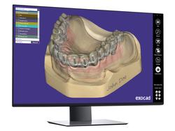 exocad-DentalCAD-Page-15-Monitor-perspek