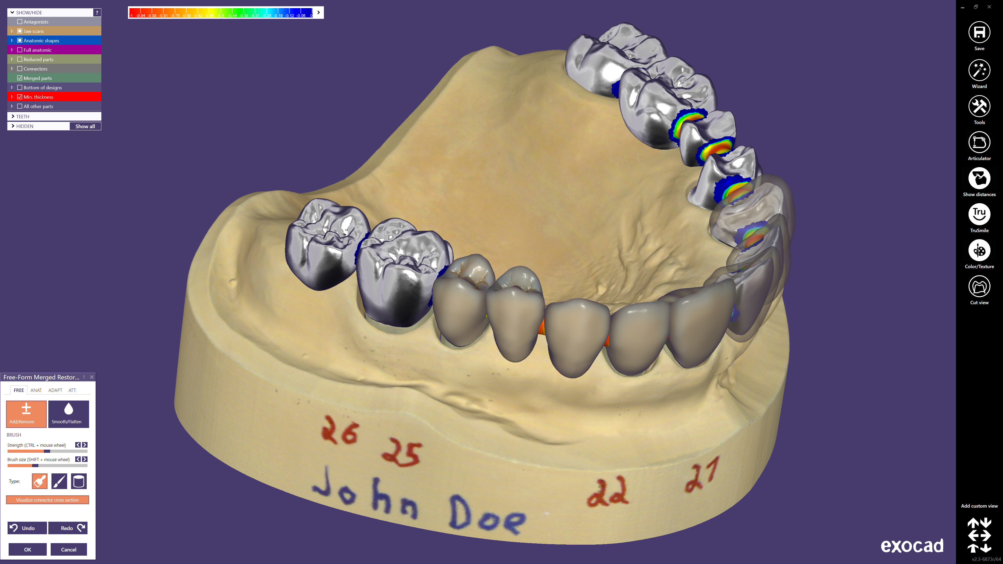exocad-DentalCAD-Page-05-Preview