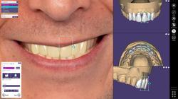 exocad-DentalCAD-Page-10-Smile-Creator
