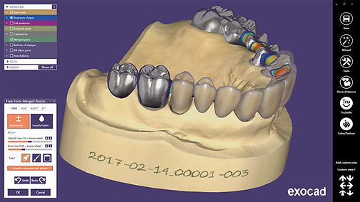 dentalcad_screenshot01.jpg