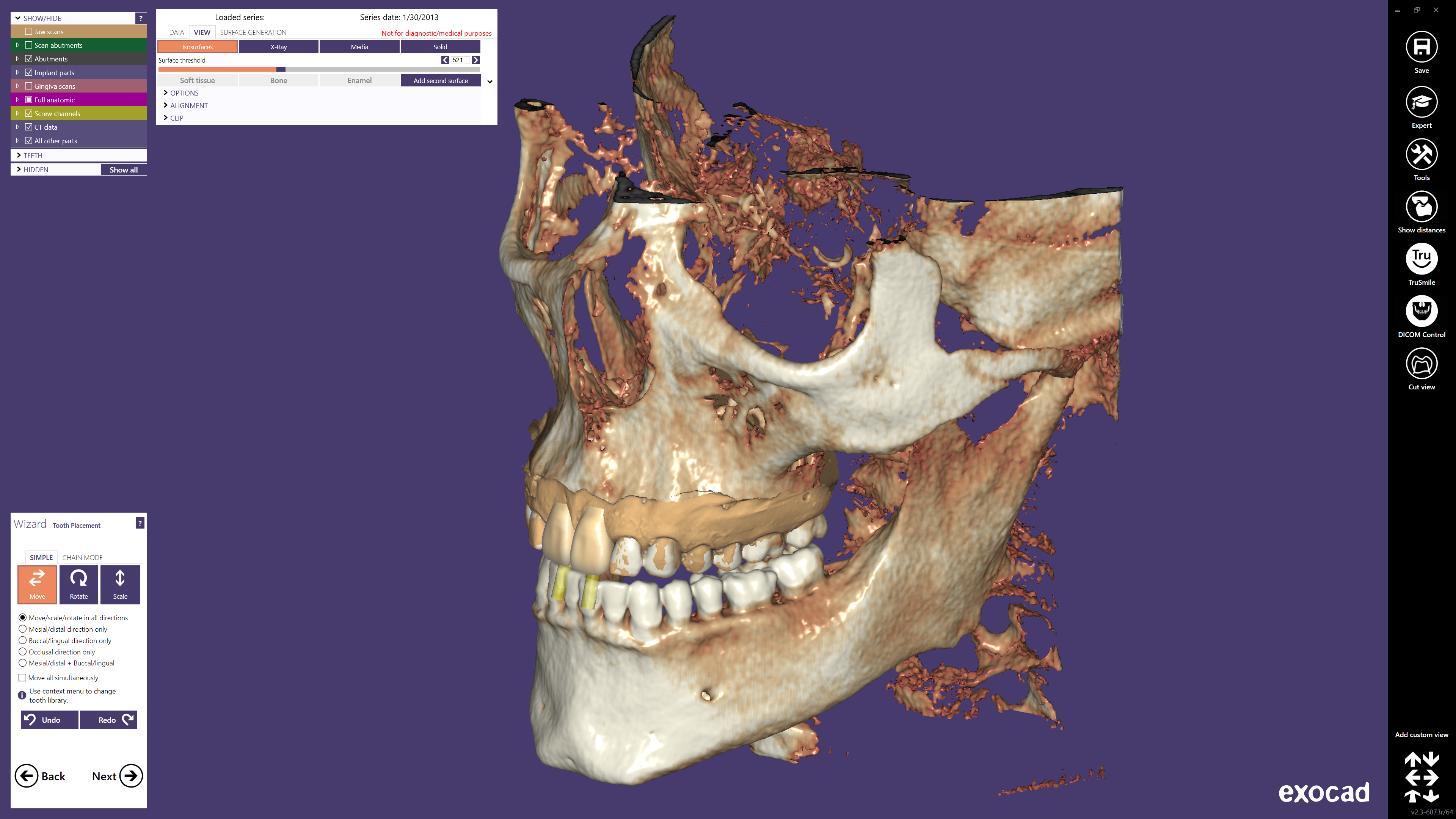 exocad-DentalCAD-Page-26-DICOM-Screen
