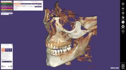 exocad-DentalCAD-Page-26-DICOM-Screen