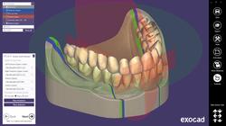 exocad-DentalCAD-Page-22-full-denture-to