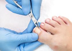 podiatry-nails